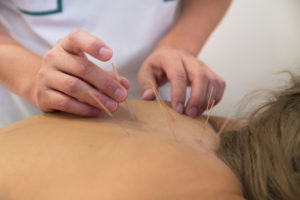 ACUPUNCTURE FOR MUSCLE PAIN
