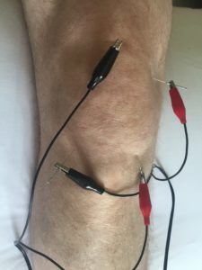 electro-acupuncture