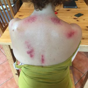 what is gua sha